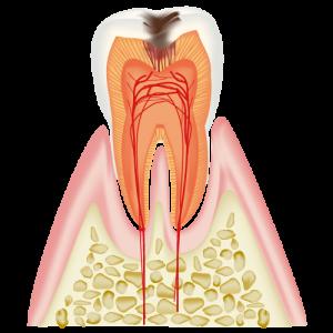C2 象牙質に達した虫歯